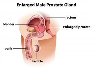 Prostate gland dollar photo club